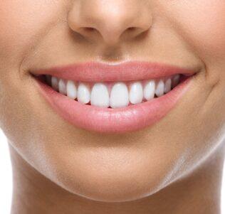Mehrleistungsbudget Zähne